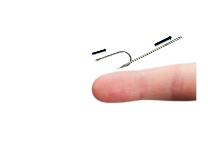 images How to Remove a Fishhook from Skin