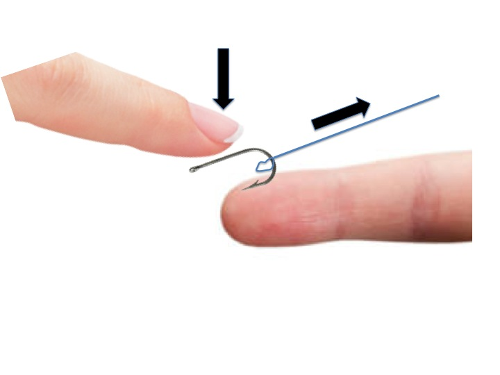 Fishing accidents how2med for Fishing hook accidents
