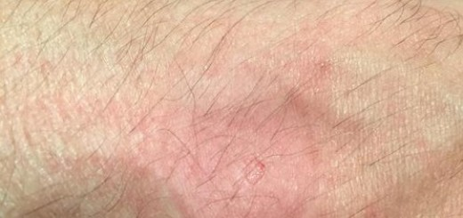 apple watch allergic dermatitis